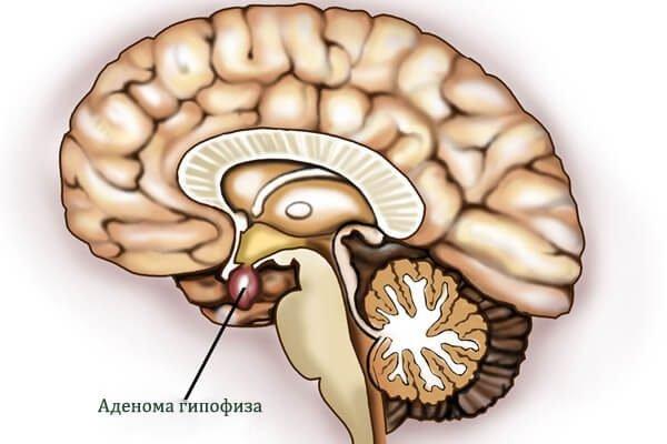 Аденома гипофиза – симптомы и лечение, фото и видео.