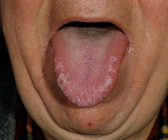 Кандидоз — симптомы и лечение