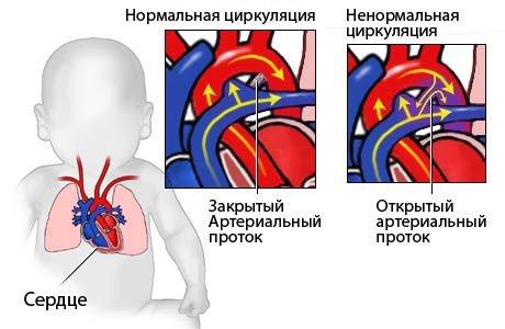 Порок сердца у детей — симптомы и лечение