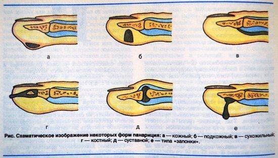 Панариций — симптомы и лечение