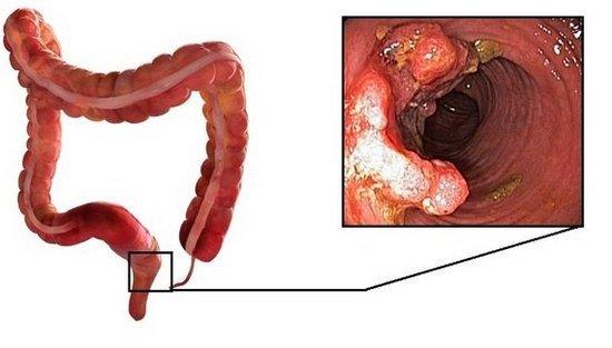 Аденокарцинома кишечника — симптомы и лечение
