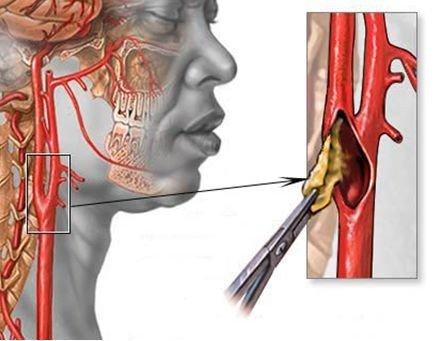 Стеноз сонной артерии — симптомы и лечение