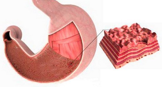 Эрозивный гастрит — симптомы и лечение