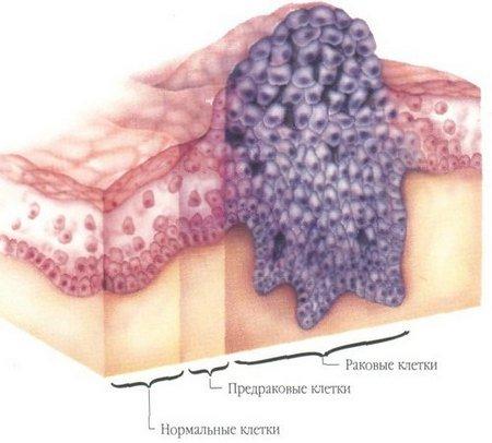 Рак языка — симптомы и лечение