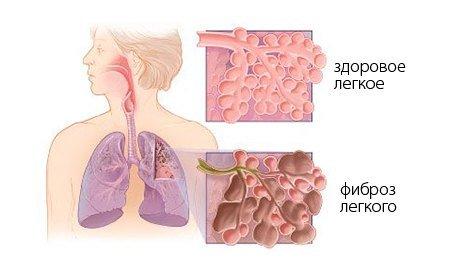 Фиброз лёгких — симптомы и лечение