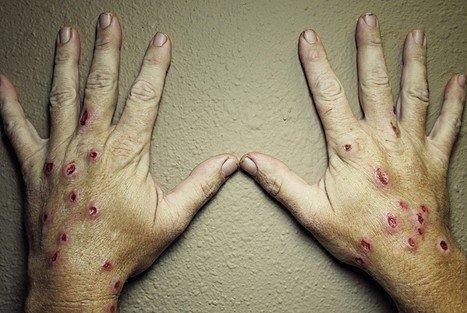 Споротрихоз — симптомы и лечение