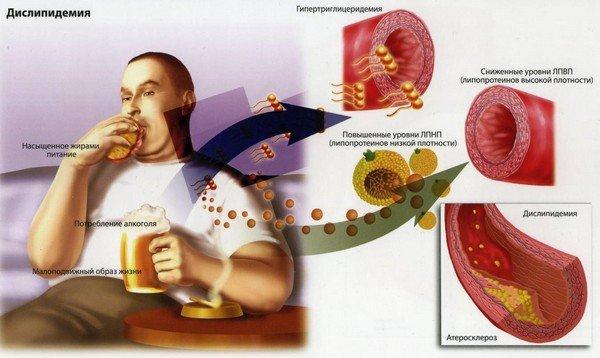 Дислипидемия гиперлипидемия — симптомы и лечение, фото и видео