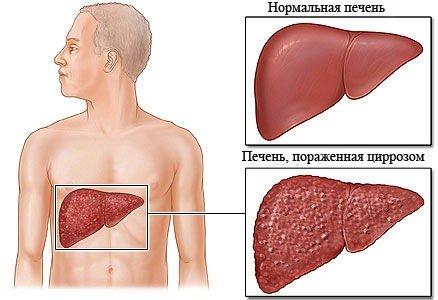 Билиарный цирроз печени — симптомы и лечение
