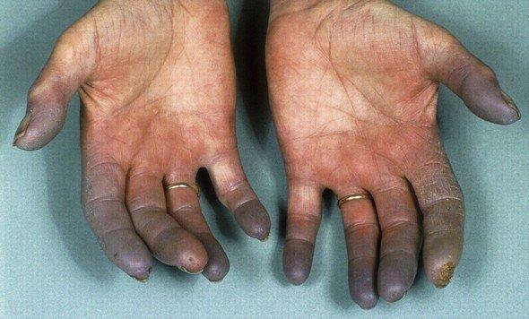 Облитерирующий тромбангиит болезнь Бюргера — симптомы и лечение