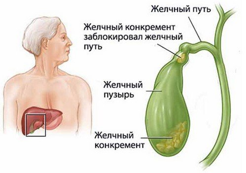 Хронический холецистит — симптомы и лечение