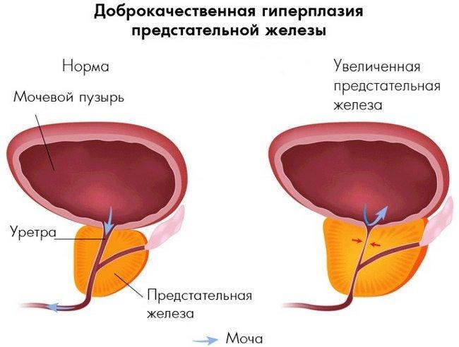 Гиперплазия предстательной железы — симптомы и лечение