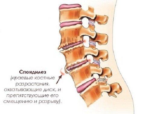 Спондилез — симптомы и лечение
