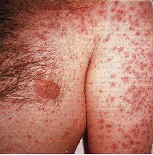 Гистоплазмоз: симптомы и лечение