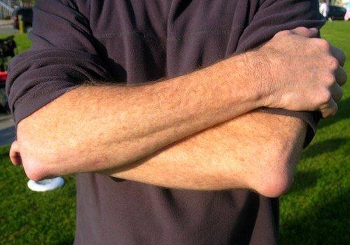Бурсит локтевого сустава — симптомы и лечение