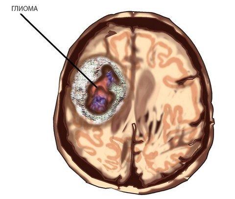 Глиома головного мозга – симптомы и лечение, фото и видео