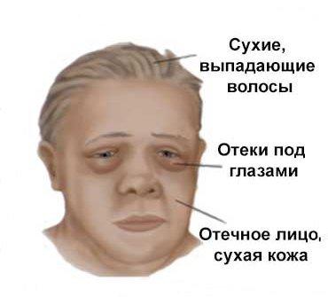 Микседема — симптомы и лечение