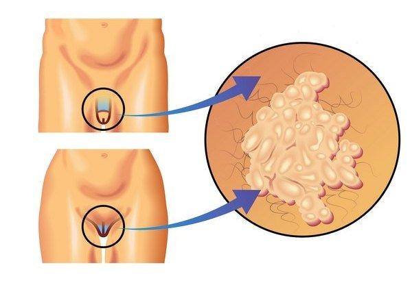 Вирус папилломы человека — симптомы и лечение