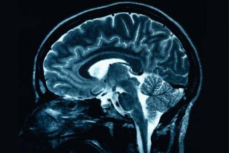 Сканирование мозга помогло ученым увидеть будущее