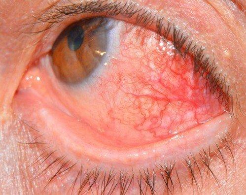 Склерит — симптомы и лечение