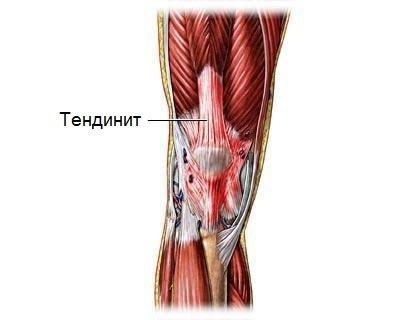 Тендинит — симптомы и лечение