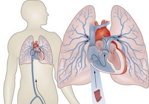 Тромбоэмболия легочной артерии — симптомы и лечение