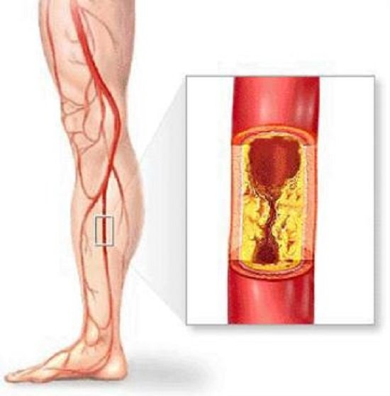 Импотенция при атеросклерозе нижних конечностей