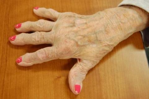 Артрит пальцев рук — симптомы и лечение