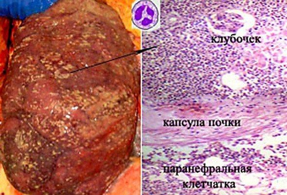 Интерстициальный нефрит — симптомы и лечение