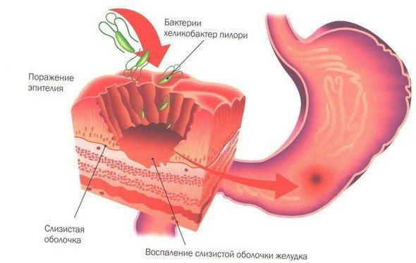 Бульбит — симптомы и лечение