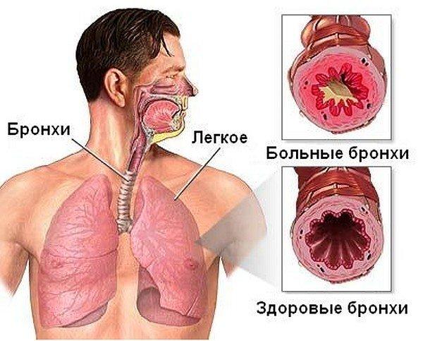 Гнойный бронхит — симптомы и лечение