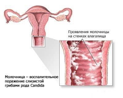 Молочница при беременности — симптомы и лечение