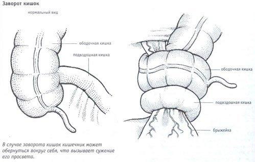 Заворот кишок — симптомы и лечение