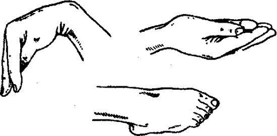 Тетания — симптомы и лечение