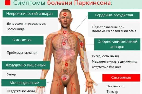 Симптомы болезни Паркинсона – симптомы и лечение, фото и видео.