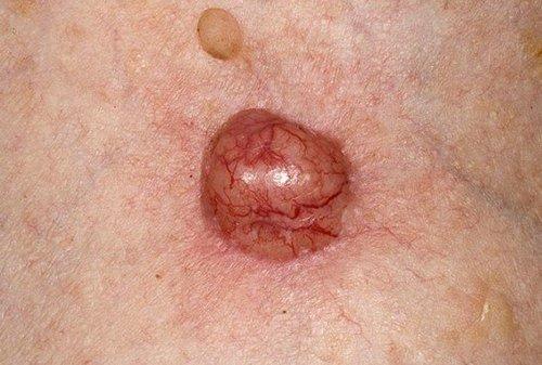 Базалиома — симптомы и лечение