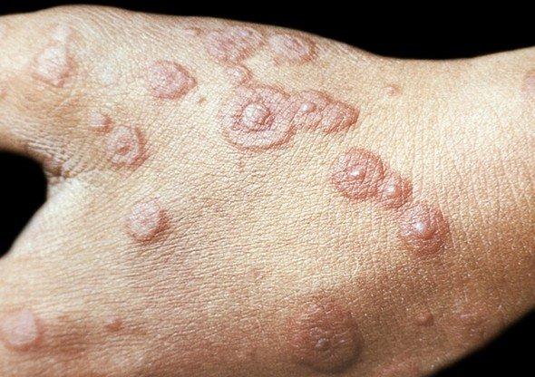 Многоформная экссудативная эритема — симптомы и лечение
