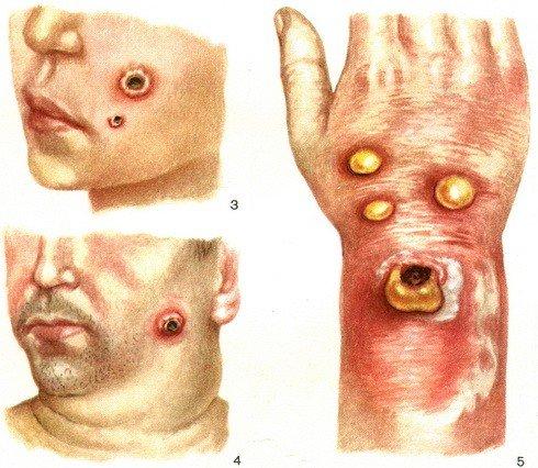 Сибирская язва — симптомы и лечение