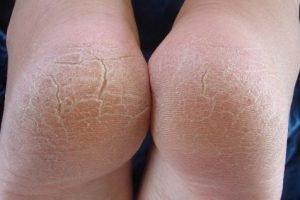 Лечение народными средствами ногтевого грибка на руках и ногах