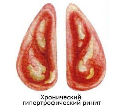 Гипертрофический ринит — симптомы и лечение