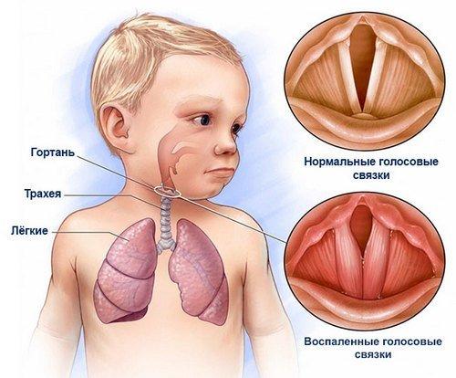 Ларингит у детей — симптомы и лечение, фото и видео