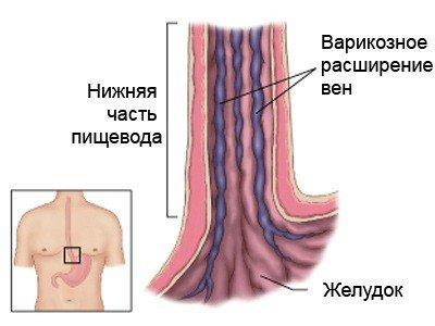 Варикозное расширение вен пищевода — симптомы и лечение