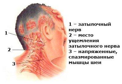 Невралгия затылочного нерва — симптомы и лечение