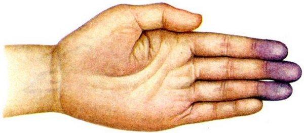 Цианоз — симптомы и лечение, фото и видео