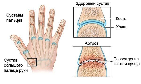 Артроз — симптомы и лечение