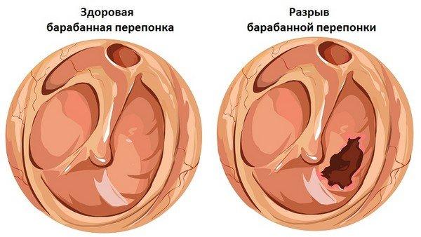 Баротравма — симптомы и лечение