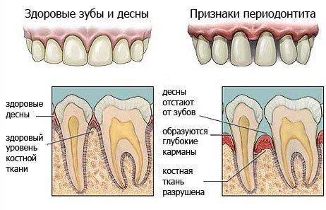 После удаления зуба когда отпадает сгусток