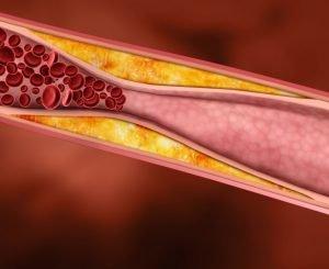 Эффективные методы понизить холестерин народными средствами