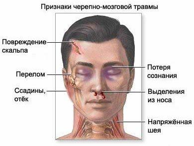 Ушиб головного мозга — симптомы и лечение