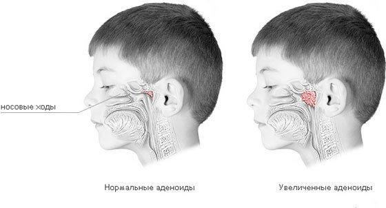 Аденоиды у детей — симптомы и лечение, фото и видео