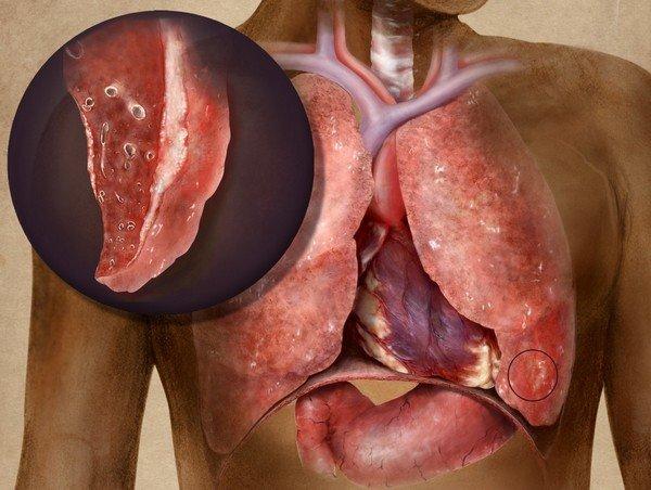 Туберкулезный плеврит — симптомы и лечение